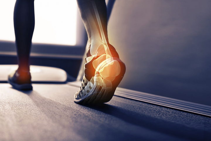 Plantar Fasciitis: What Is It? What To Do About It?